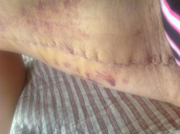Photos du lifting des cuisses une semaine post op ma - Comment cuisiner une cuisse de sanglier ...