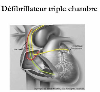 Qu 39 est ce qu 39 un d fibrillateur cardiaque implant tpe for Pacemaker triple chambre