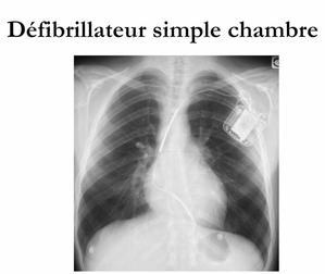 Blog de tpe dci 1s2 page 3 tpe d fibrillateur for Pacemaker triple chambre