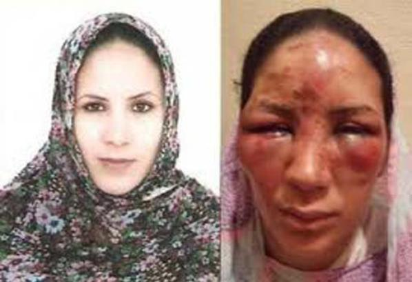 torture au maroc
