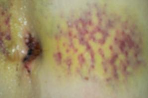 Les cicatrices