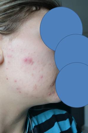 Début du Traitement pour l'acné