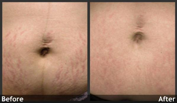 Quelque exemple avec la stretch mark