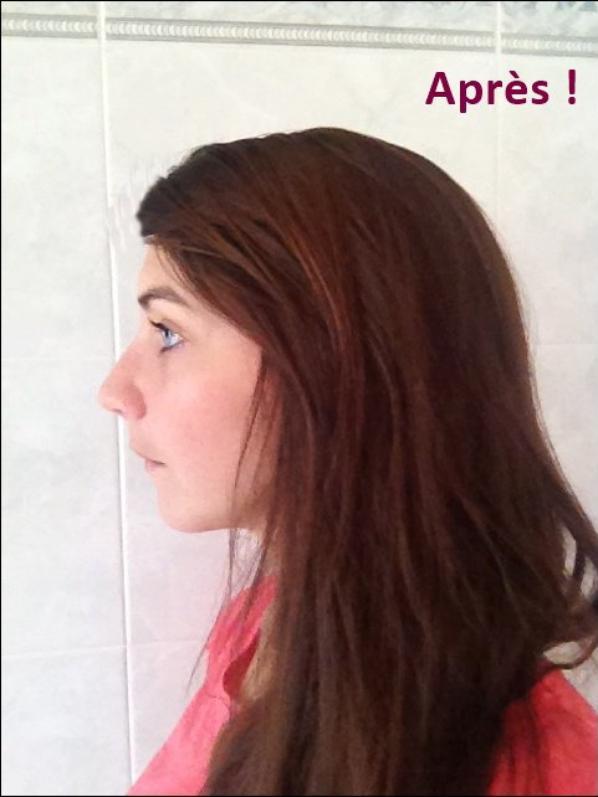 Comparaison profil pré-op avec profil post-op :)
