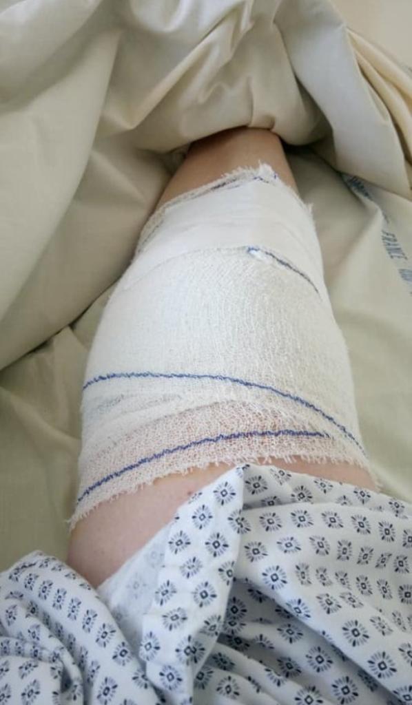 opération du genoux