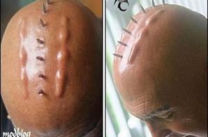 Implant corporel