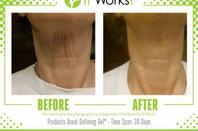 Envie d'améliorer la qualité de peau ?  - Améliore le grain et la fermeté de la peau  - Redéfinie l'apparence des contours de votre silhouette  - Adoucit et hydrate la peau