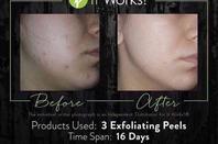 Envie d'un gommage tout en douceur et profondeur ?  - Retire les excès d'huile, les cellules mortes de la peau et les saletés obstruant les pores  - Réduit l'apparence des pores, ridules et rides  - Nettoie et enlève pour un teint d'apparence plus sain  - Rajeunit la peau avec une explosion d'extraits botaniques et de fruits revigorants  - Laisse la peau plus douce, plus lisse et d'une apparence plus fraîche  - Couplez avec Cleanser et Facial pour créer la meilleure expérience spa à la maison