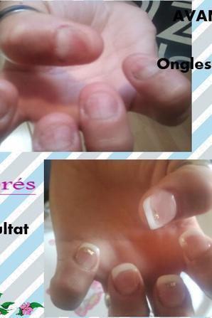 pose chablons resine sur ongles tres rongé