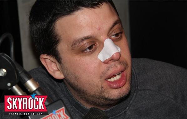 Romano retire les points noirs du nez de Cédric