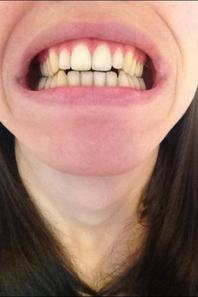 Sourire gingival et occlusion