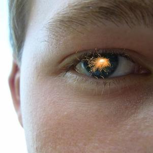 Mon oeil!!!
