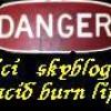 acid-burn-life