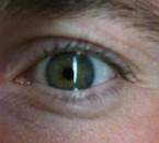 lol mn oeil gauche éfraillan xd