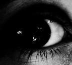 mon oeil x_x