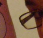 Mes yeux et ce de patrick (L'