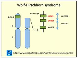 Syndrome de Wolf-Hirschhorn