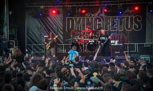 """DYING FETUS - """"Weaken the Structure"""" (Official Audio)"""