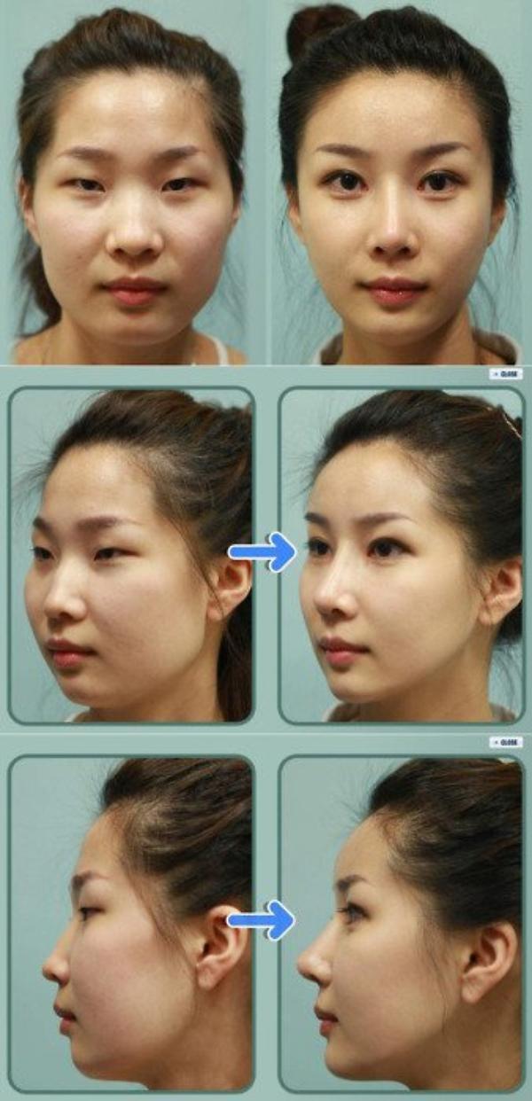 La chirurgie made in Corée