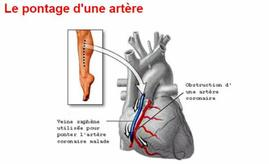23   Pontage aorto-coronarien