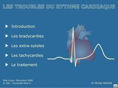 26   Arythmie cardiaque