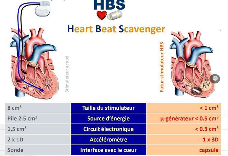 43   Un pacemaker miniature
