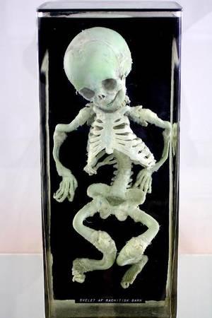 """Dans le Cabinet des Curiosités de Lenore:""""Squelette d'Enfant Rachitique"""""""
