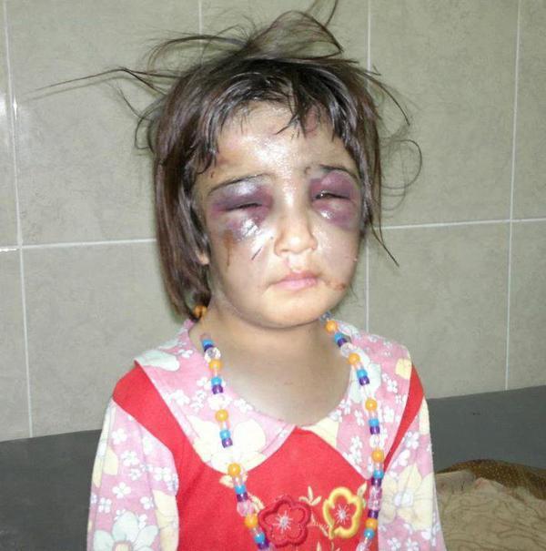 Si toi aussi t'es contre la maltraitance des enfants, mets j'aime et partage !