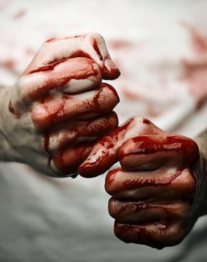 Chapitre 8 : #  Bloody #