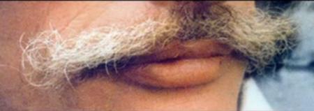 1980) Moustaches de Jean FERRAT