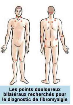 La fibromyalgie - Mieux vivre avec une douleur (13)