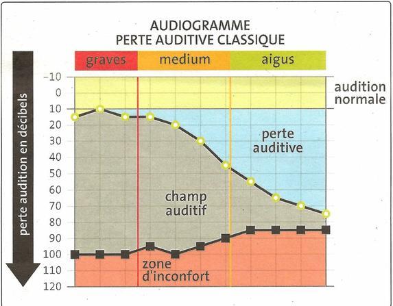 Qu'est ce que c'est la perte auditive ?