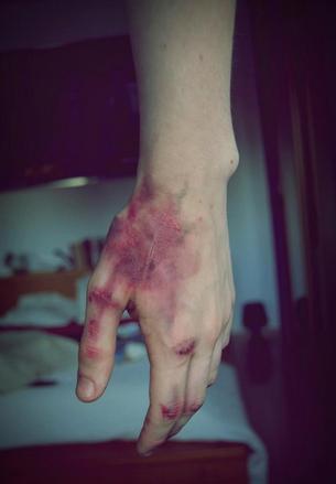 You're still written in the scars on my heart.