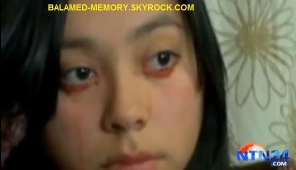 INFO-INSOLITE : Elle pleure des larmes de sang (Vidéo)