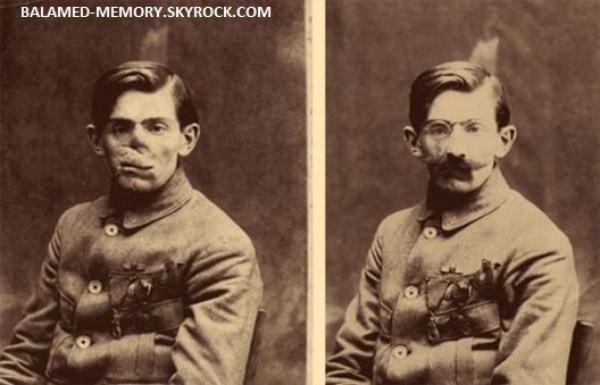 HISTOIRE : Les visages défigurés de la Grande Guerre