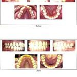 Detailed Look On Anaheim Dental