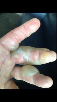Photos de la main de Hulk Hogan explosée par un radiateur