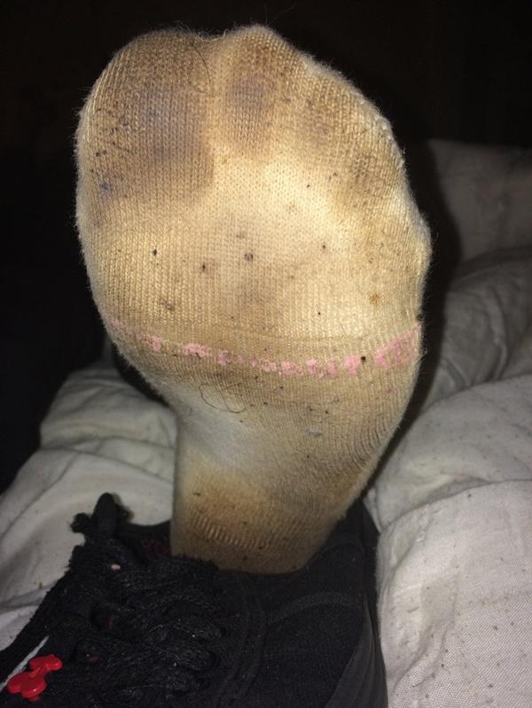Pieds de ma femme avec ses chaussettes depuis deux semaines avec baskets temps des cerises