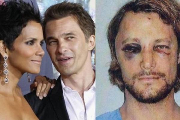 ( Photo) Halle Berry: Son ex mari s'est fait exploser la tête par Olivier Martinez