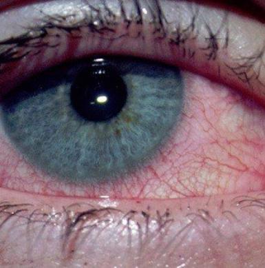 le fil de tension suspendu à chaque oeil. Relié aux tiens.