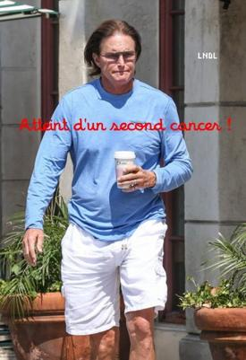 Bruce Jenner : Atteint d'un second cancer de la peau !