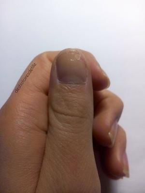 [CONSEIL n°1] Help me ongle cassé !