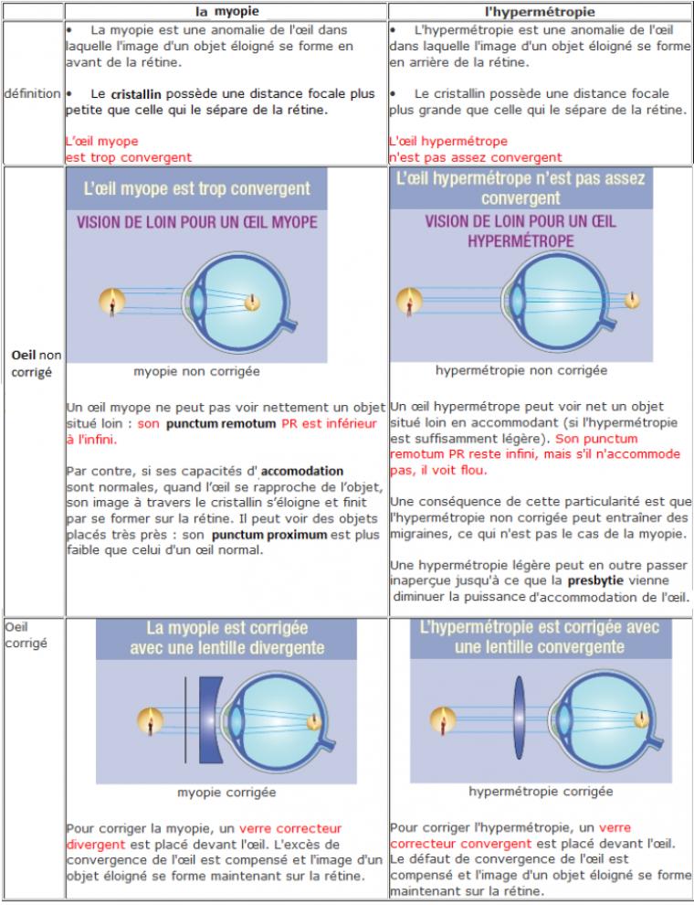 IV - Myopie et hypermétropie. Chapitre 3. L œil réduit   certains défauts  et leurs corrections (suite 1 00837933267e