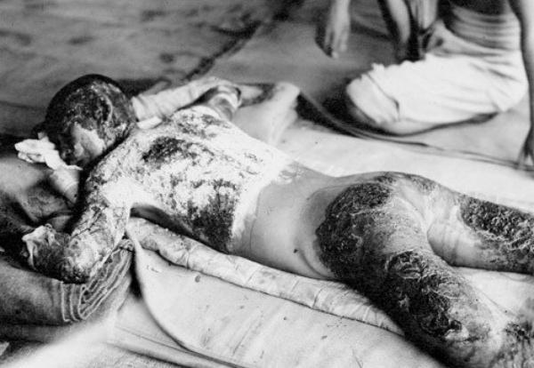 Marcel Junod le héro d' Hiroshima