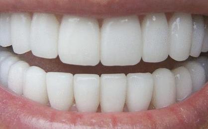 comment avoir les dents plus blanches prettypolish c 39 est ici. Black Bedroom Furniture Sets. Home Design Ideas