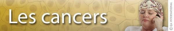 Les cancers : causes et prévention | Dictionnaire Visuel
