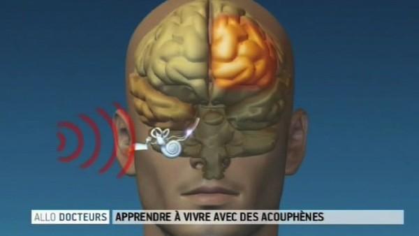 Acouphènes : quand le silence s'entend : Allodocteurs.fr