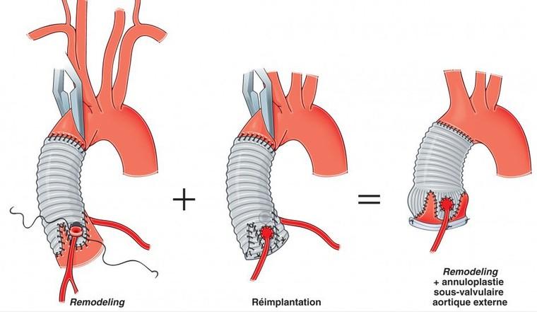 La réparation valvulaire aortique - IMV