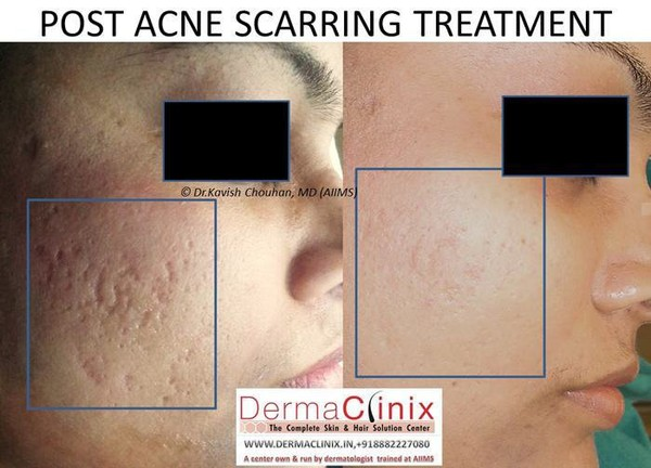 Why Choose a Dermatologist for Acne Treatment?