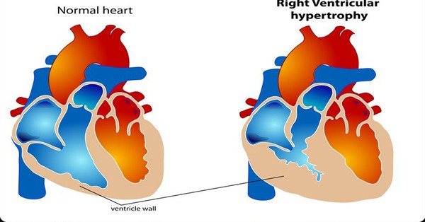 7 Strange And Surprising Signs Of Heart Disease You Need To Know About - Healthy Food Society